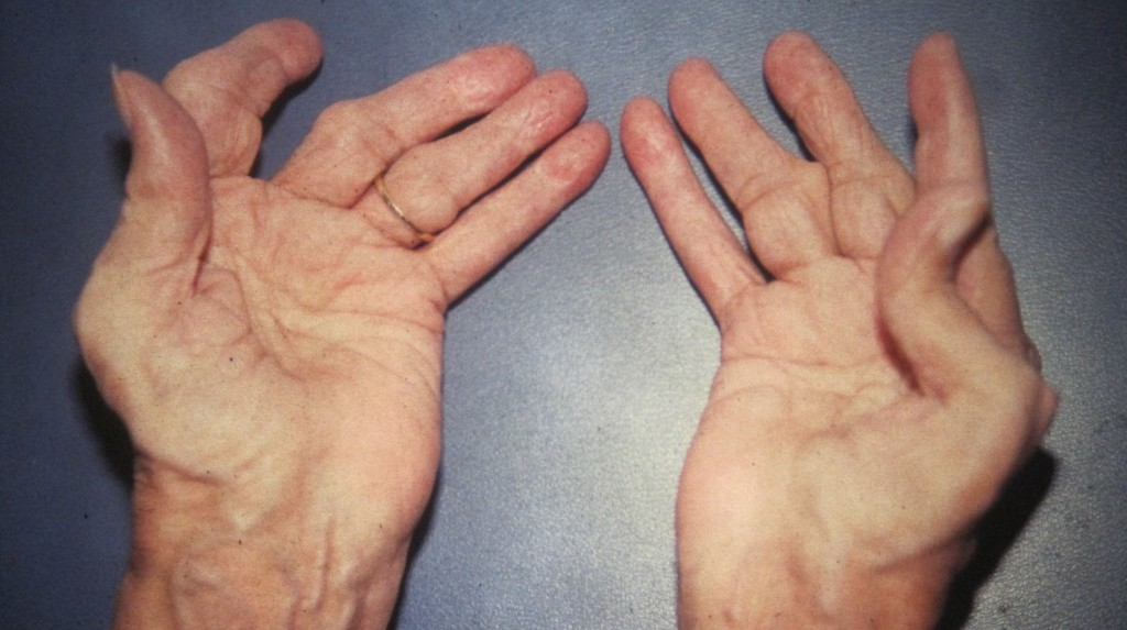 Generally The Rheumatoid Arthritis Stimulates Issues In Several Joints In The Same Time Early Rheumatoid Arthritis Symptoms Attends To Affect The Small