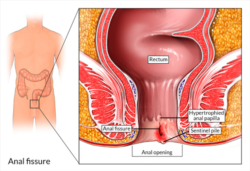 Treatment of anal fissures