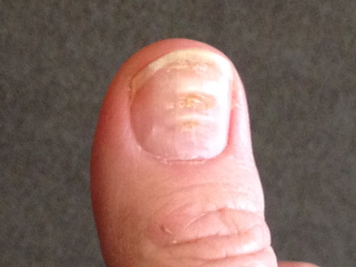 What\'s Up With My Finger Nails? | Page 4 | Things Health